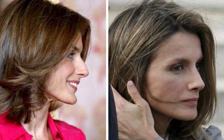 Links vor der Nasen-OP und rechts danach