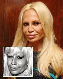 """Bei der Designerin Donatella Versace, 54 erkennt Schönheitsexpertin Dr. Barbara Sturm """"das typische Hollywood-Gesicht"""": starre Z"""