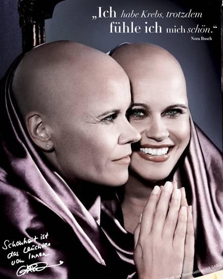 """Ein Anzeigenmotiv der """"DKMS Life"""" Kampagne mit Gabo"""