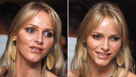 Charlene Wittstock hat plötzlich eine volle Oberlippe und wenn sie lächelt verzieht sich ihr Gesicht noch kaum.