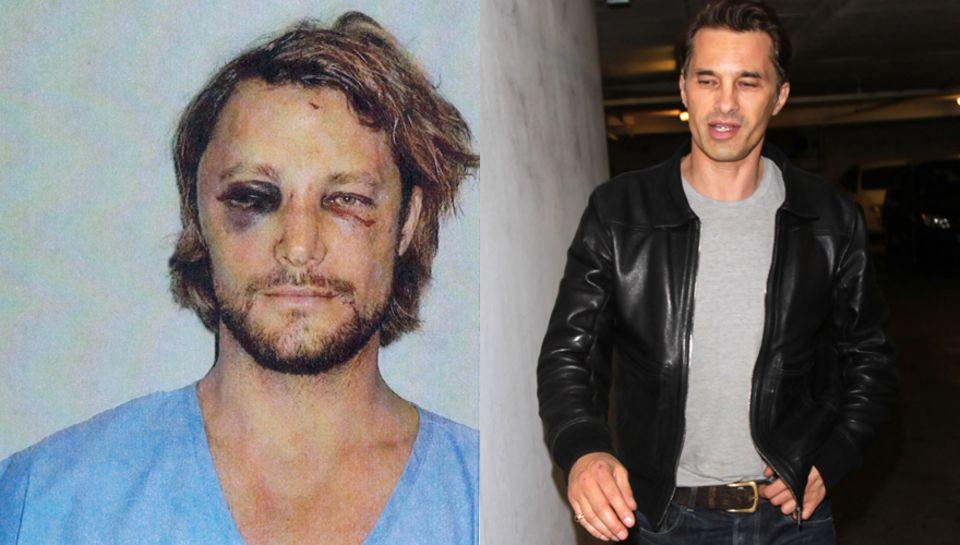Gabriel Aubry weist nach der Attacke schwere Gesichtsverletzungen auf, Olivier Martinez dagegen sieht fast unversehrt aus. Der S