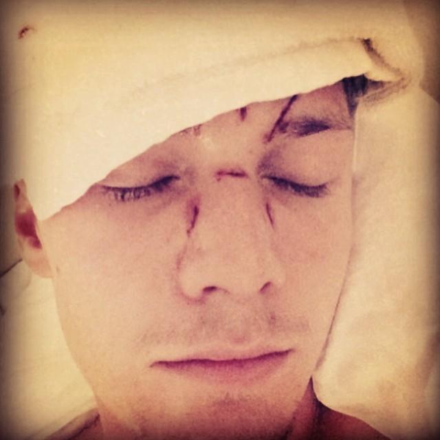 Barron Hilton postete ein Bild mit seinen Verletzungen bei Instagram