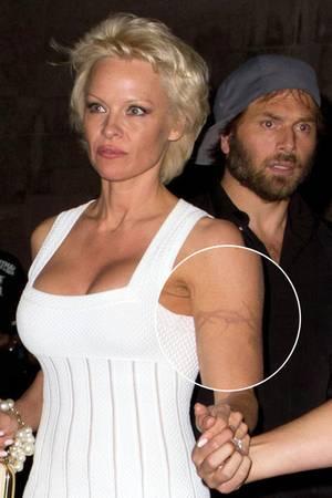 4d415934152f3 Pamela Anderson lässt sich nach fast 20 Jahren ihr Stacheldraht-Tattoo  entfernen