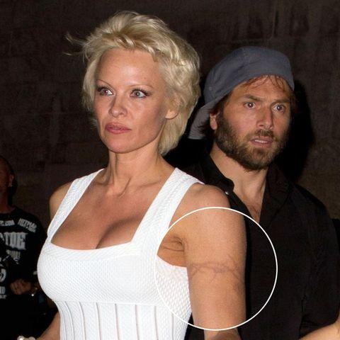 Pamela Anderson lässt sich nach fast 20 Jahren ihr Stacheldraht-Tattoo entfernen