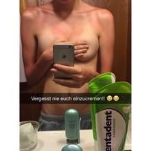 """""""Sorry für die Freizügigkeit, sind aber auch nur Brüste..."""", schreibt Ajsa Selimovic zu diesem Facebook-Foto, das ganz eindeutig ihren Sonnenbrand zeigt, den Blick jedoch auf andere Körperstellen lenkt."""