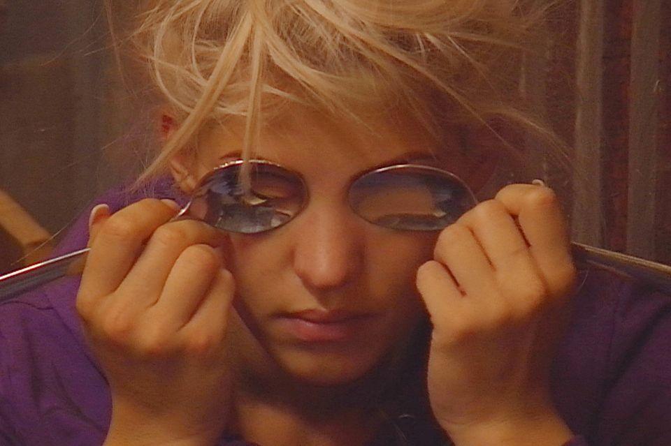 Sarah Nowak kühlt ihre geschwollenen und entzündeten Augen mit Löffeln.