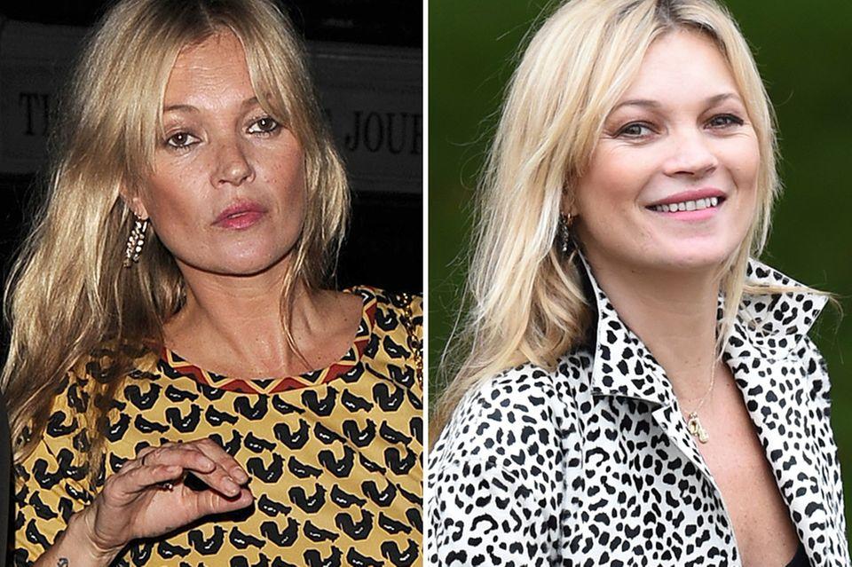 Zum Vergleich: Als Kate Moss vor zehn Tagen in London unterwegs ist, erkennt man sie an ihren typisch hageren Gesichtszügen. Vor der Fashionshow von Burberry sind diese jedoch viel volleren gewichen.