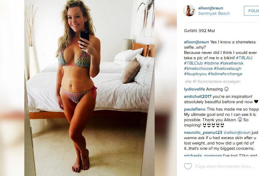 Auf Bali macht Alison Braun Bikini-Fotos, die sie auf Instagram mit ihren Fans teilt. Das hätte sie sich vor sieben Jahren und rund 66 Kilo mehr auf der Waage nie ertäumen lassen.