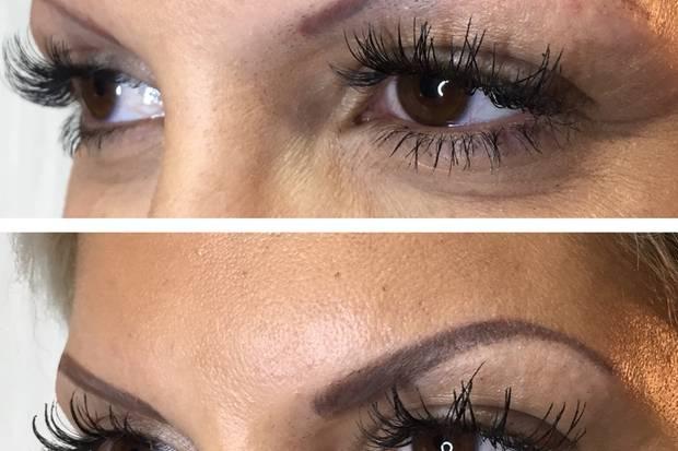 Von der Mini-Raupe zur Augenbraue: Auch hier ist eine deutliche Veränderung im Vorher-Nachher-Vergleich erkennbar.