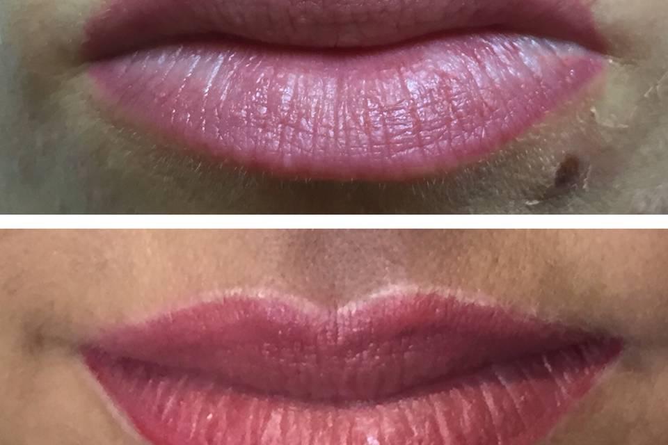 Sophias Lippen im Vorher-Nachher-Vergleich: Nach der Behandlung (unten) sehen die Umrisse ihrer Lippen sichtlich definierter und sauberer verarbeitet aus.
