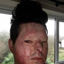 Säure-Opfer Andreas Christopheros: Andreas ist heute auf einem Auge blind.