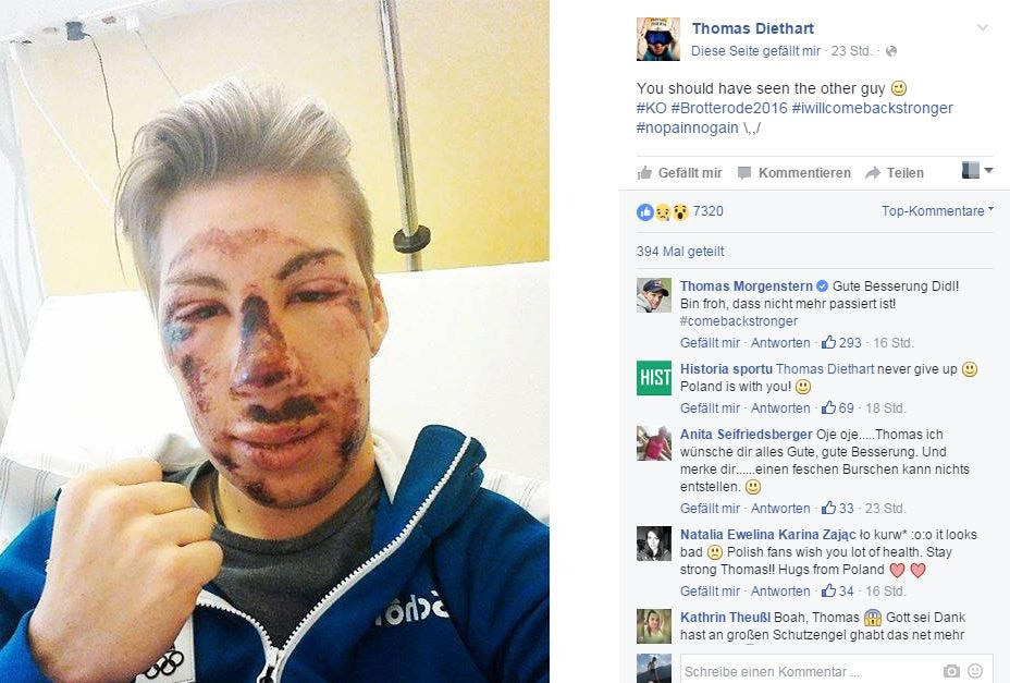Thomas Diethart zeigt sich kämpferisch: Ich komme stärker zurück, schreibt er zu dem Foto aus dem Krankenhaus