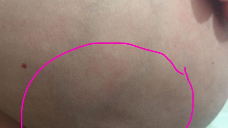 Brustkrebs wie aus sieht Brustkrebs (Mammakarzinom)
