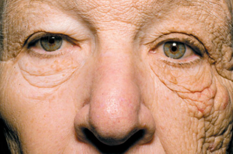 Schockierendes Foto: So rapide altert die Haut ohne Sonnenschutz