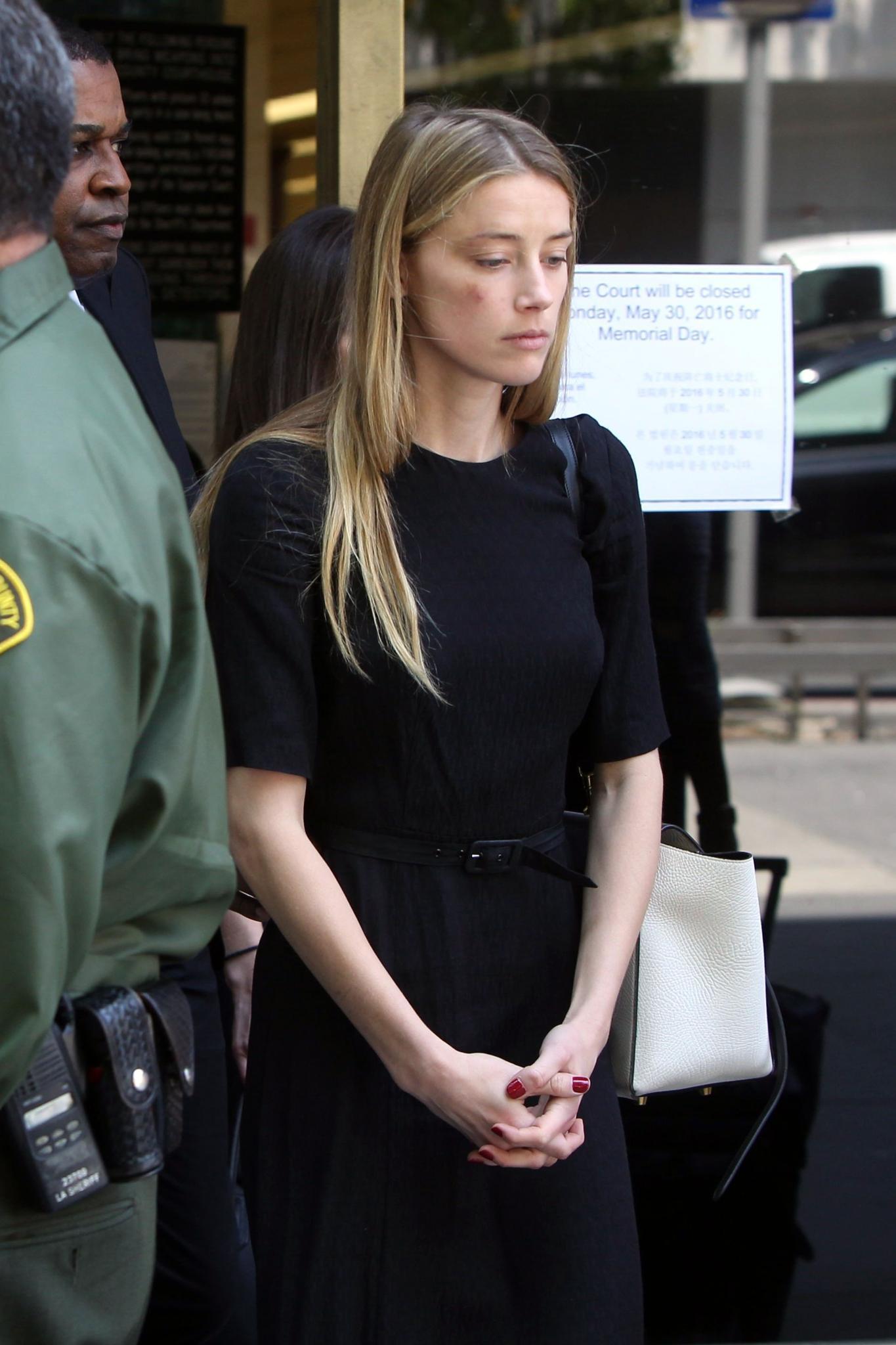 Amber Heard verlässt das Gerichtsgebäude in Los Angeles. In ihrem Gesicht sind blaue Flecken zu sehen.