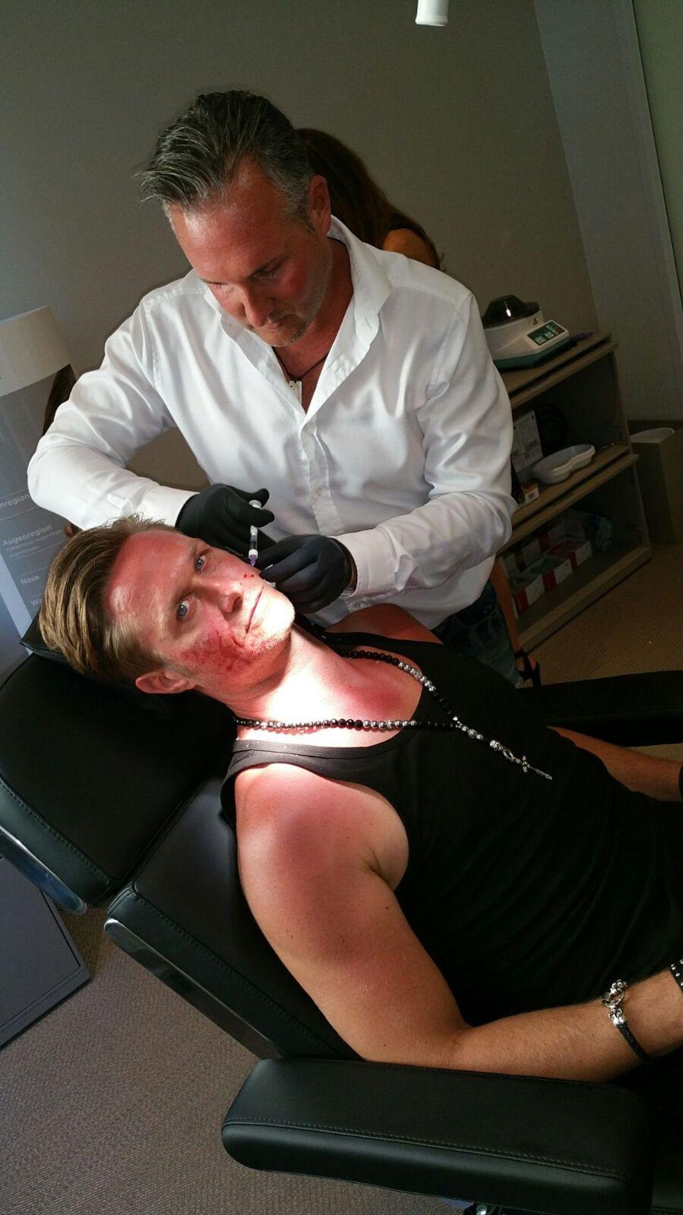 Nico Schwanz legt sich beim Beauty-Doc unters Messer.