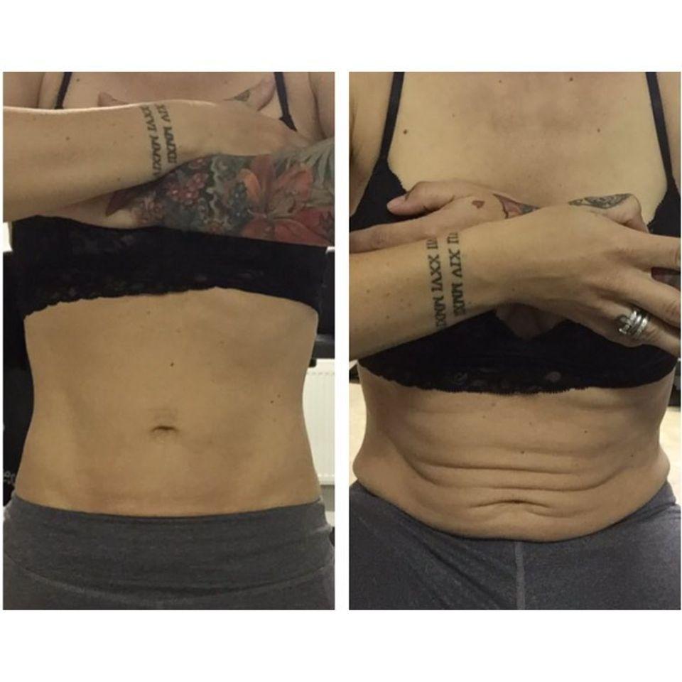 Charlotte Würdig zeigt ihre Bauchfalten