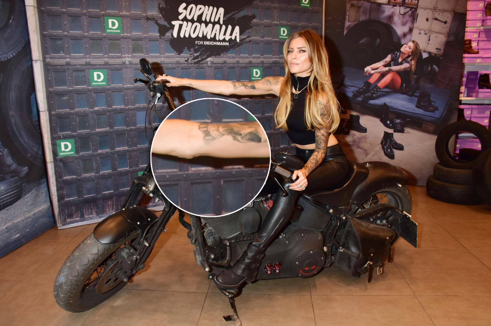 Sophia Thomalla: Sophia Thomalla präsentiert ganz offen ihre XL-Narbe.