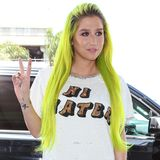 Schon seit einiger Zeit trägt Sängerin Kesha ihre lange Mähne in Neon-Grün-Gelb. Mittlerweile wächst ihr Ansatz raus und sie sieht einfach nur noch aus wie ein wandelnder Textmarker.