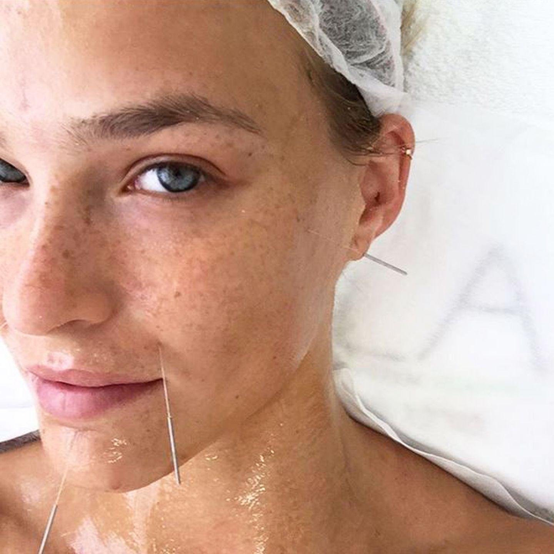 """""""Weil ich es mir wert bin?"""" fragt sich Supermodel Bar Refaeli auf Instagram. Eines zeigt dieser Akupunktur-Schnappschuss auf jeden Fall: Wer schön sein will, muss leiden."""