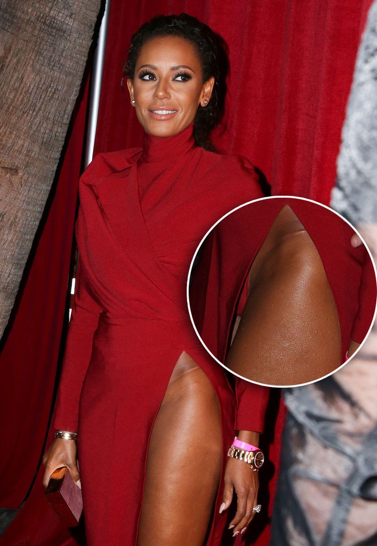 Viele Stars wollen auf dem roten Teppich sexy aussehen, doch manch einer schießt dann über das Ziel hinaus. Mit Mega-Schlitz zeigt sich Mel B bei einer Veranstaltung und merkt anscheinend nicht (oder doch?), dass ihr Slip ständig hervorblitzt.