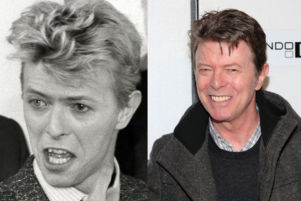Auch Sänger David Bowie zeigt sich Eitel und lässt sich seine Zähne begradigen.