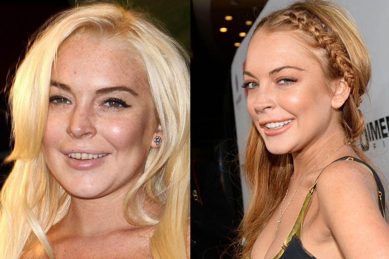 Auch Skandalnudel Lindsay Lohan hat erkannt was ein schönes Lächeln ausmachen kann und ist gegen die starken Verfärbungen ihrer Zähne angegangen.