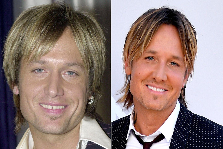 Der Frisur ist Keith Urban auch nach zwölf Jahren treu geblieben, aber die Zanhlücke zwischen seinen Schneidezähnen ist auf wundersame Weise geschrumpft.