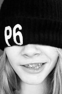 Das It-Model, das sich hier hinter einer Mütze versteckt, erkennt man schon an der Stupsnase. Cara Delevingne trägt ihre personalisierten Grillz mit viel Humor.