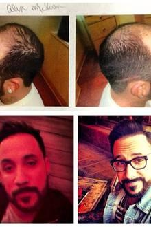 """""""Backstreet Boy"""" AJ McLean steht zu seinem Eingriff: Nachdem die beginnende Glatze immer größer wurde, entschied er sich für eine umfassende Haartransplantation. Das Ergebnis präsentiert der Sänger stolz in den sozialen Medien - und erntet viel Lob von seinen Fans."""