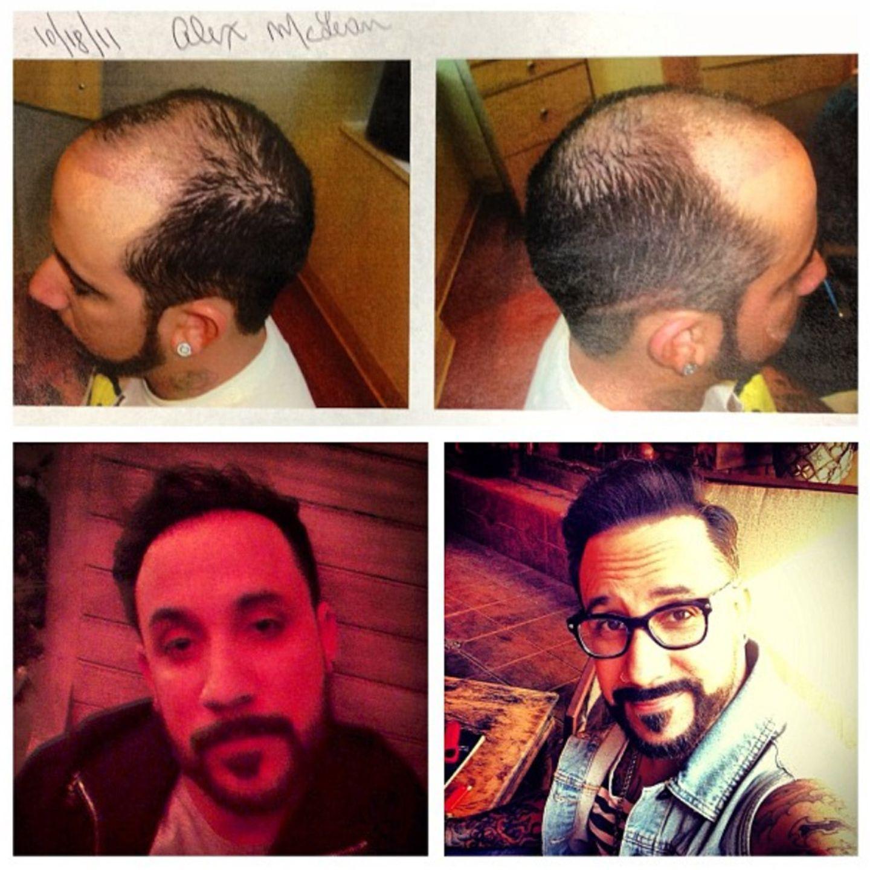 Frisuren für beginnende glatze