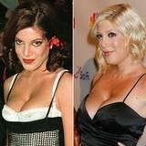 """Im Laufe der Jahre hat sich """"Bevely Hills 90210""""-Star Tori Spelling einigen Schönheitsoperationen unterzogen und sich dadurch sehr verändert. Eine Brustvergrößerung stand ganz offensichtlich auch auf der To-do-Liste."""