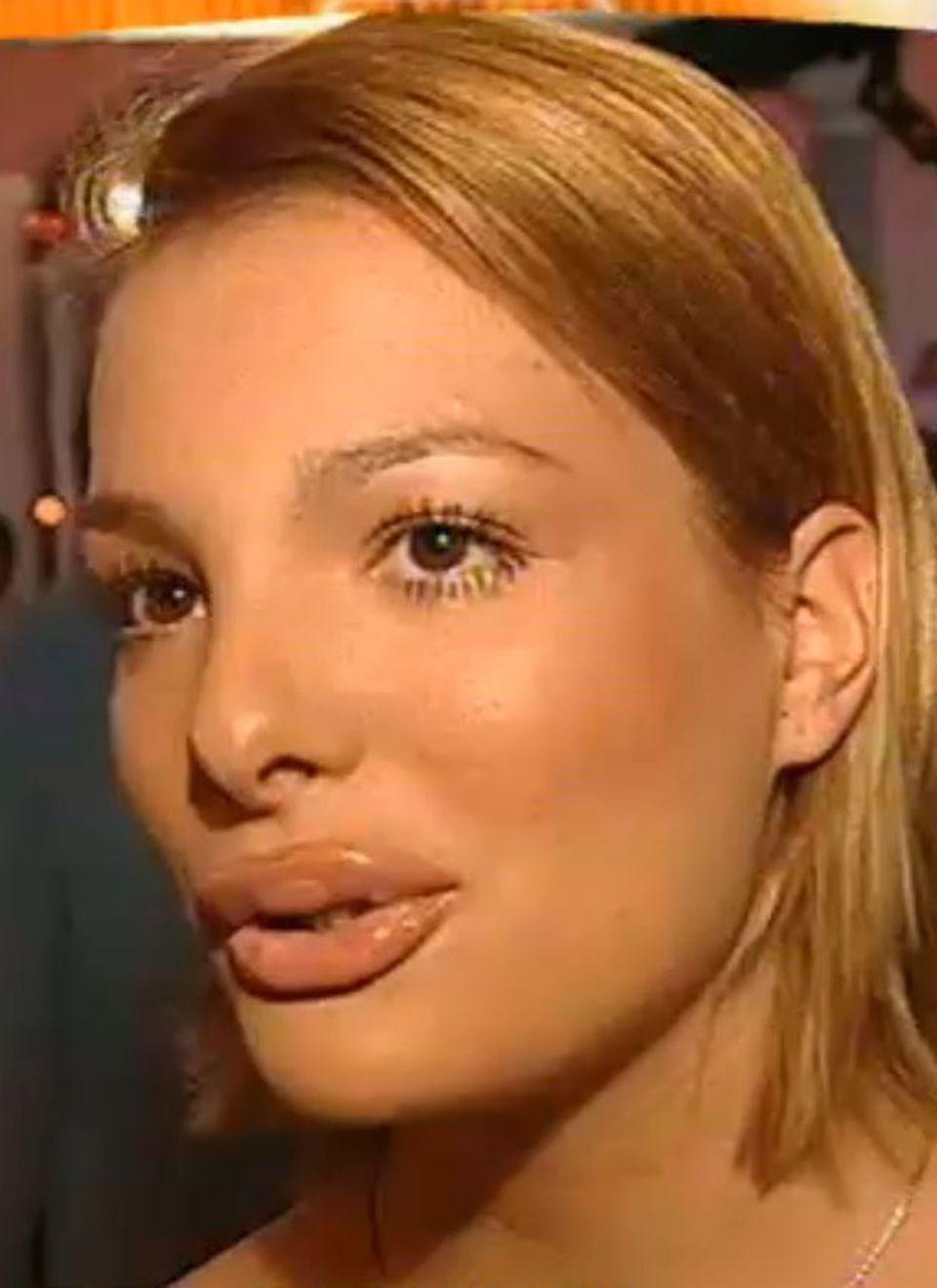 """Ihren Einfallsreichtum bewies Chiara Ohoven bereits mit 18 Jahren: Als sie bei einem RTL-Interview auf ihren """"kussfreundlichen"""" Mund angesprochen wird, lässt sie sich innerhalb von weniger Sekunden eine Ausrede einfallen, die Stefan Raab sogar in sein """"TV total""""-Programm aufnimmt. Sie behauptet nämlich, dass ihre Lippen nur durch ihre neue Haarfarbe, das helle Blond, mehr zur Optik kommen würden. Warum also noch zum Beauty-Doc, wenn der Friseur anscheinend ähnliche Wunder bewirken kann?!"""