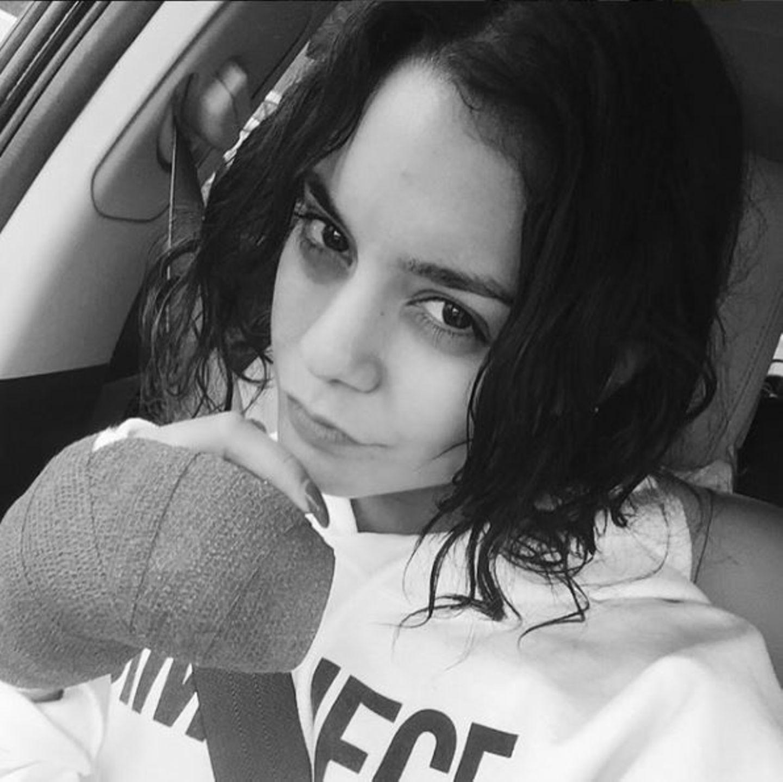August 2015  Vanessa Hudgens hat sich den Finger gebrochen und teilt ein Foto auf Instagram.