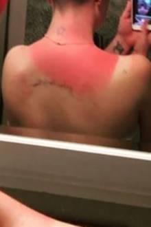 """""""Die Sonne hasst mich & ich hasse die Sonne"""", schreibt Kelly Clarkson zu diesem übel aussehenden Spiegel-Selfie. """"Das ist nach nur zehn Minuten passiert & ich habe sogar im Schatten gesessen."""" Die blasse Haut der Musikerin ist offenbar sehr sonnenempfindlich. Da hilft nur einer hoher Sonnenschutzfaktor und im Schatten bleiben."""