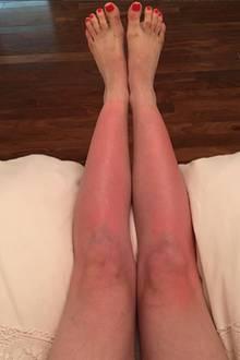 Schauspielerin Elle Fanning hat einen sehr blassen Teint und ist daher besonders gefährdet für Sonnenbrand. Leider hat es jetzt ihre Beine erwischt!