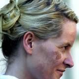Prinzessin Mette-Marits Verbrennungen nach dem besagten Interview mit n.tv machen sich an Haut und Augen bemerkbar. Die Schäden an ihrer Hornhaut sind zum Glück nur oberflächlich und nicht dauerhaft.