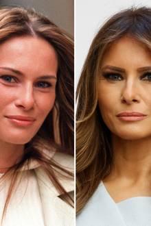 Ganz so natürlich wie vor noch 16 Jahren wirkt Melania Trump heute aber nicht mehr. Man könnte bei diesen Katzenaugen zumindest ein Lifting vermuten. Und auch die Starrheit ihrer Mimik spricht für den Besuch der mittlerweile 46-Jährigen beim Botox-Beauty-Doc.