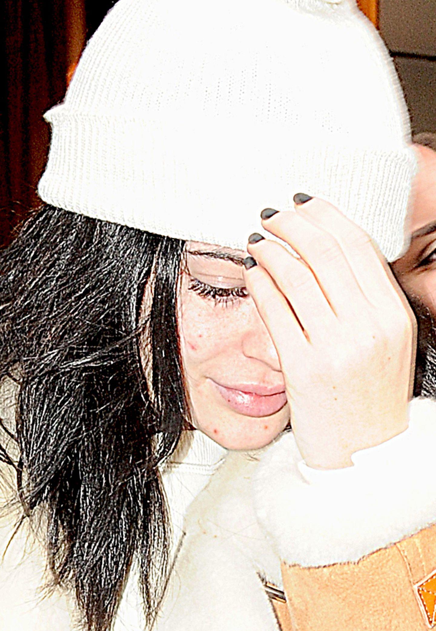 Kylie Jenner macht es wie ihre ältere Schwester, und versucht ihr Gesicht unter einer Mütze und hinter ihrer Hand zu verstecken. Auch in ihrem Gesicht sind kleinere Unreinheiten zu sehen.