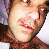 Januar 2017  Nein, es ist nicht häusliche Gewalt. Robbie Williams hatte nur eine Auseinandersetzung mit seinem Computer gehabt und der Computer hat gewonnen. Die Verletzung trägt er natürlich mit Würde.