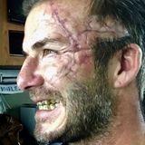Gruselige Narben und ungepflegte Zähne: Einer der heißesten Männer der Welt steckt unter der Maske - erraten Sie wer es ist?