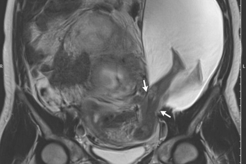 Schockierendes Ultraschallbild! Aus der Gebärmutter ragen die Beine ...