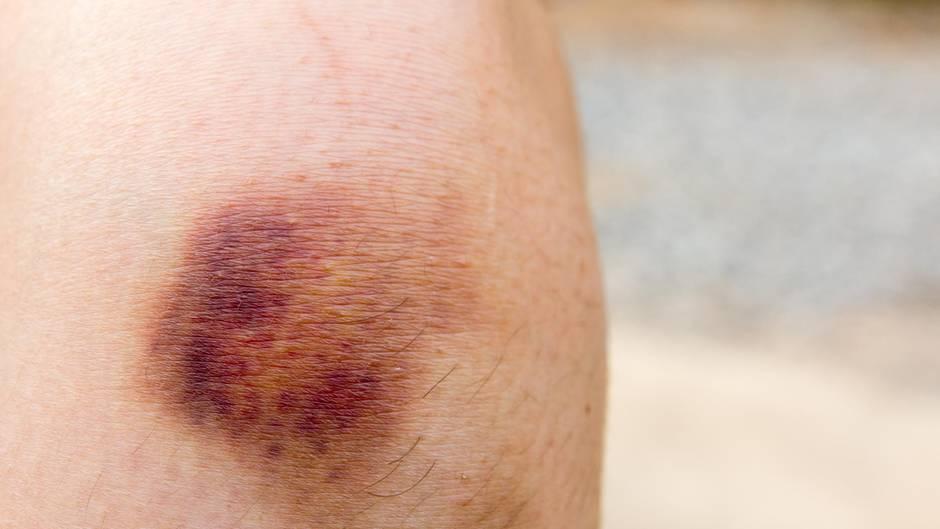 Schlimme Diagnose: Dabei hatte sie nur blaue Flecken