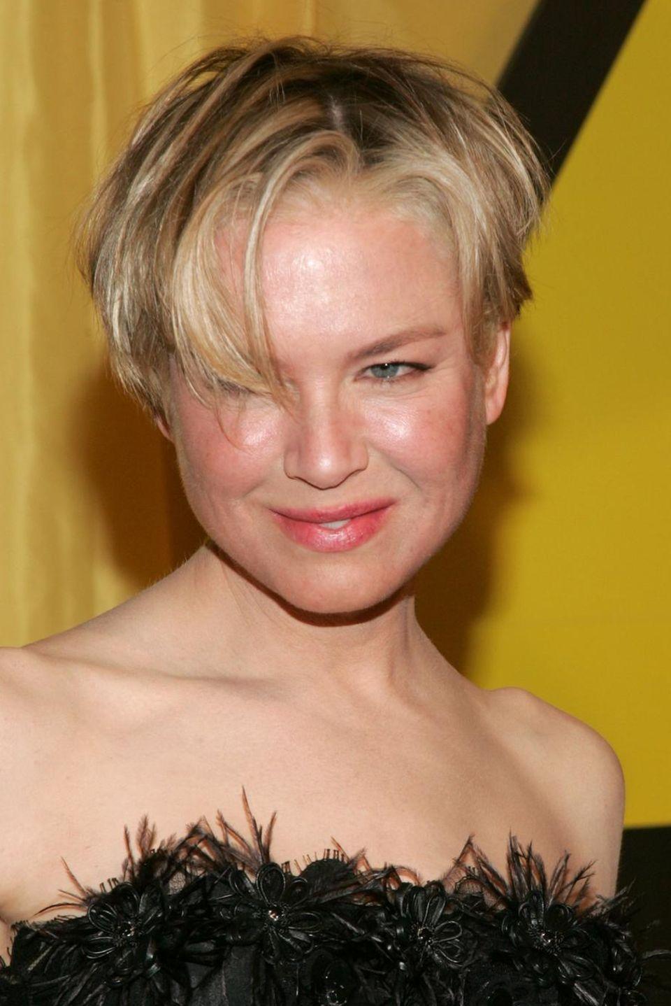 """2007:Gerötete Haut, aufgedunsene Gesichtszüge - Renée Zellweger kann aus ihren kosmetischen Eingriffen kein Geheimnis mehr machen. Mit dem """"Facial Sandblasting"""" versucht sie ihr jugendliches Aussehen aufrecht zu erhalten."""