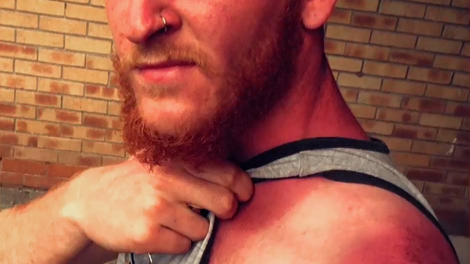 Sonnebrand