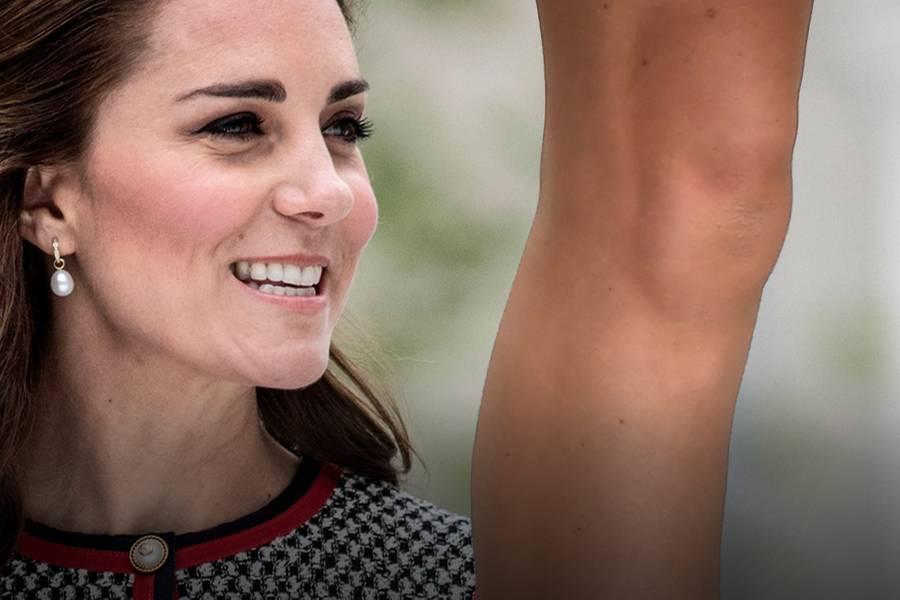 Herzogin Catherine und Casper, das Knie