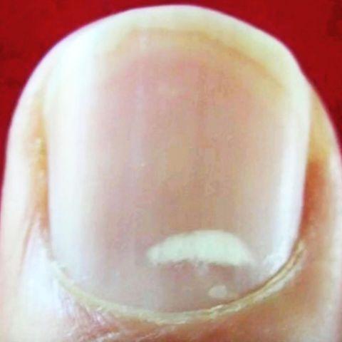 Unerwartete Diagnose: 20-Jährige kaute am Fingernagel
