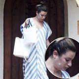 Ob im TV oder auf dem roten Teppich - Lea Michele ist als absolutes Glamour-Girl bekannt. Doch außerhalb des Rampenlichts verwandelt sie sich in eine ganz normale Frau zurück - die wir wir alle ebenfalls mit Hautunreinheiten zu kämpfen hat und sich auch einmal einen Gammel-Tag inklusive Bad-Hair und Wohlfühl-Kleid gönnt. Ganz ungeniert zeigt sie mit Pickelcreme im Gesicht, dass auch sie nicht perfekt ist. Und wir lieben sie dafür!