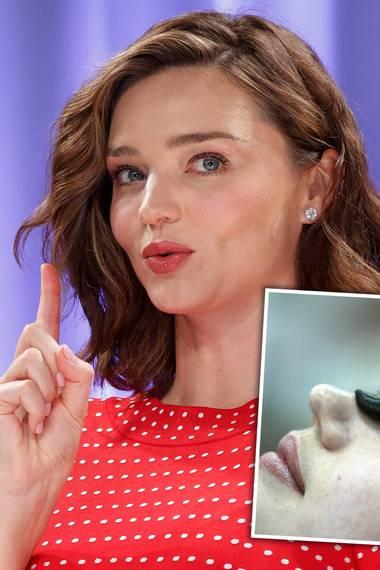 Dieser Beauty-Trick ist wirklich nichts für schwache Nerven! Miranda Kerr unterzieht sich Blutegel-Facials, bei denen man sogar die kleinen Zähnchen spüren könnte. Zumindest gesteht sie, dass dieses Beauty-Treatment ein wenig verückt sei. Uaaaahhh!