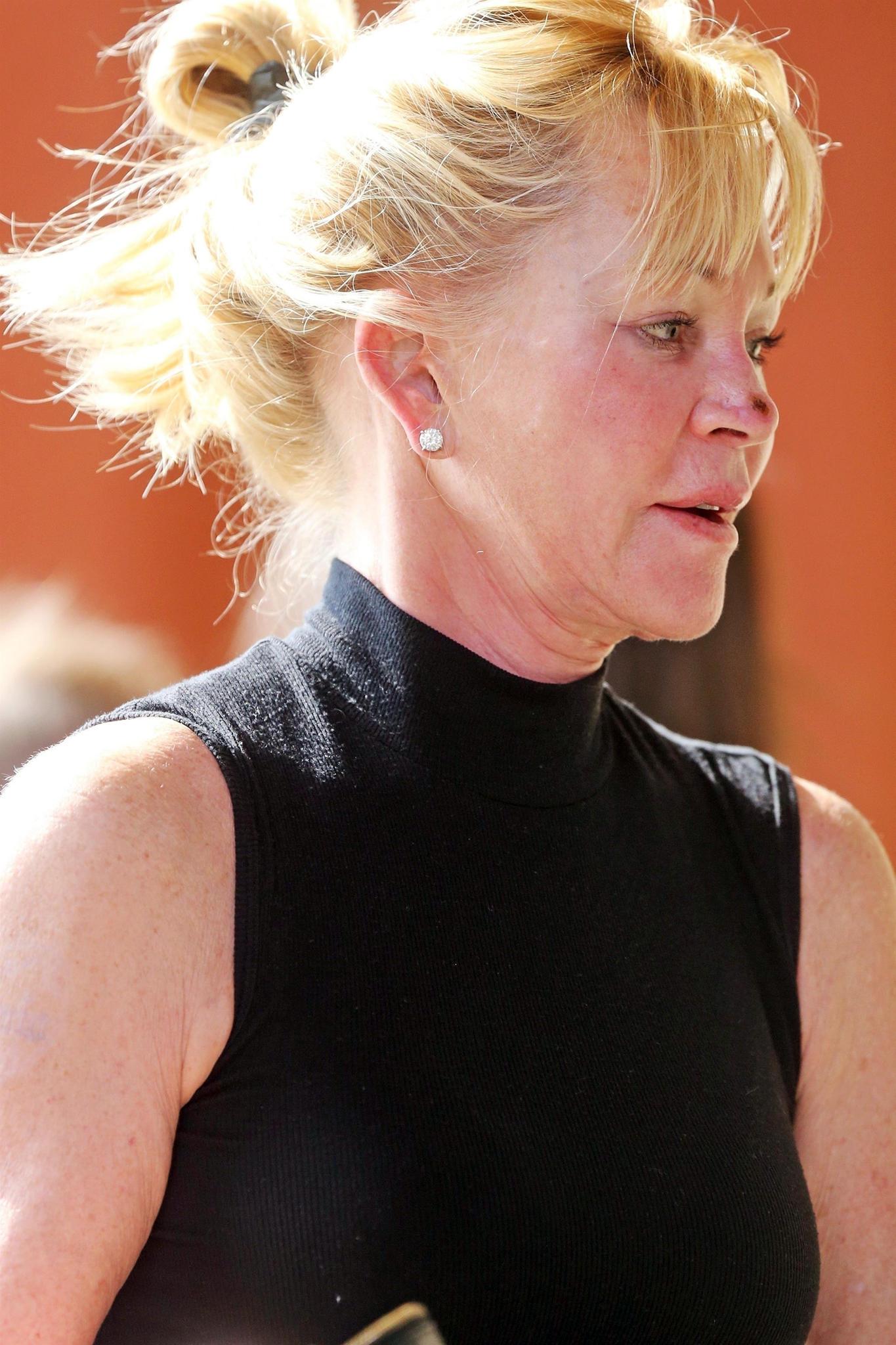 Hollywoodstar Melanie Griffith hat eine Verletzung auf der Nase.